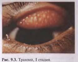 Заболевания конъюнктивы - Офтальмология, глазные болезни - скачать медицинские учебники, лекции - медицинский сайт студентам вра