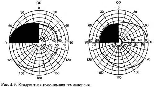 Определить границы поля зрения
