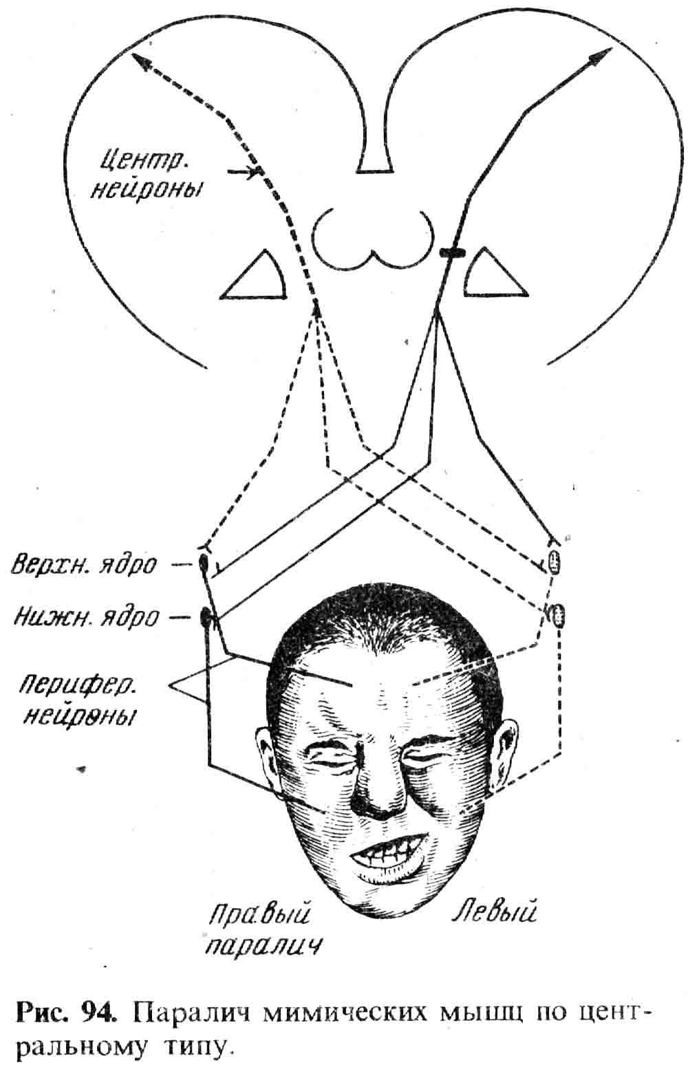 Паралич Корковый фото