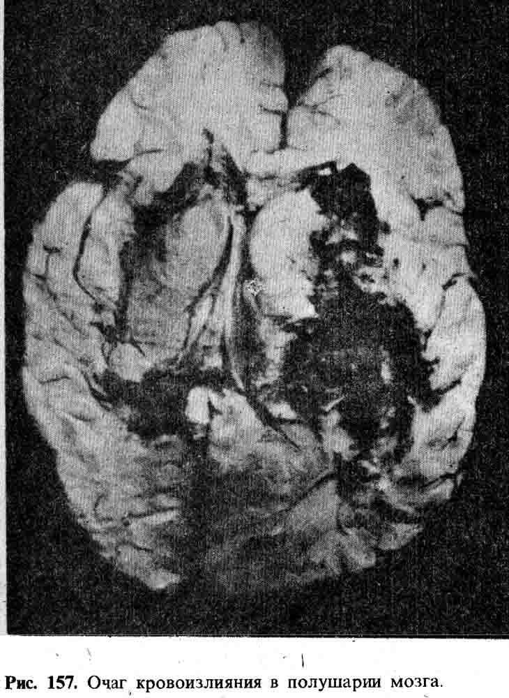 финансовая кровоизлияние в левое полушарие мозга поездов станции