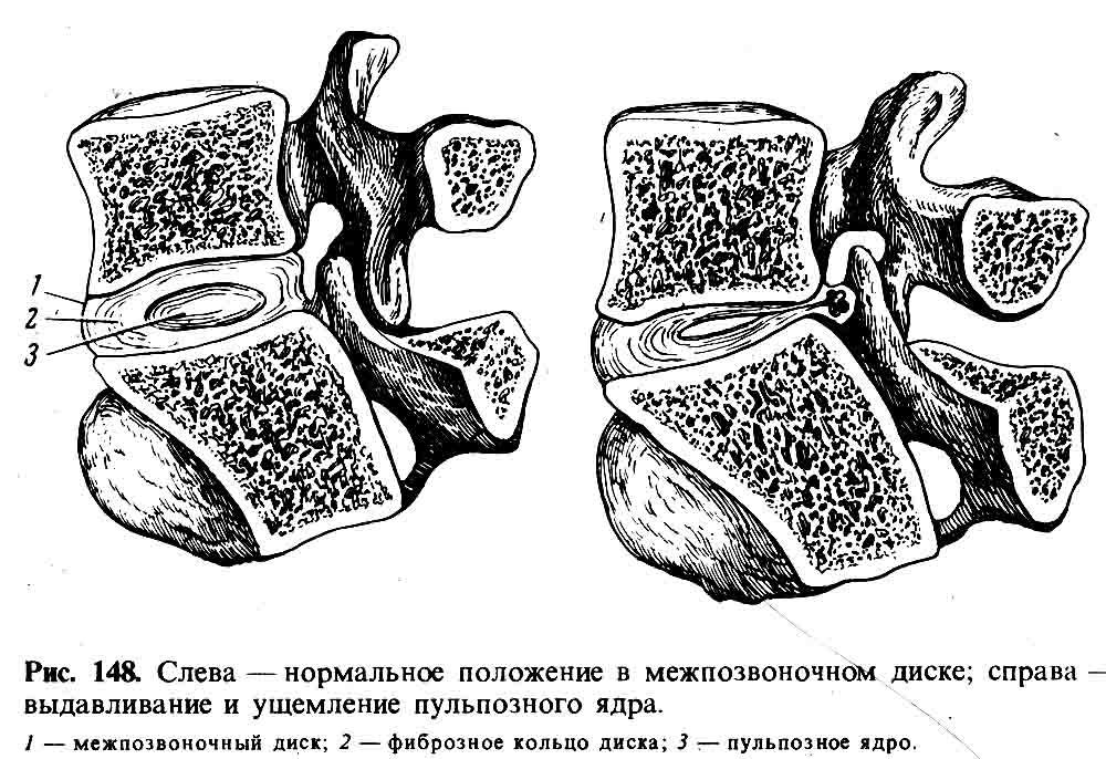 Миелопатия