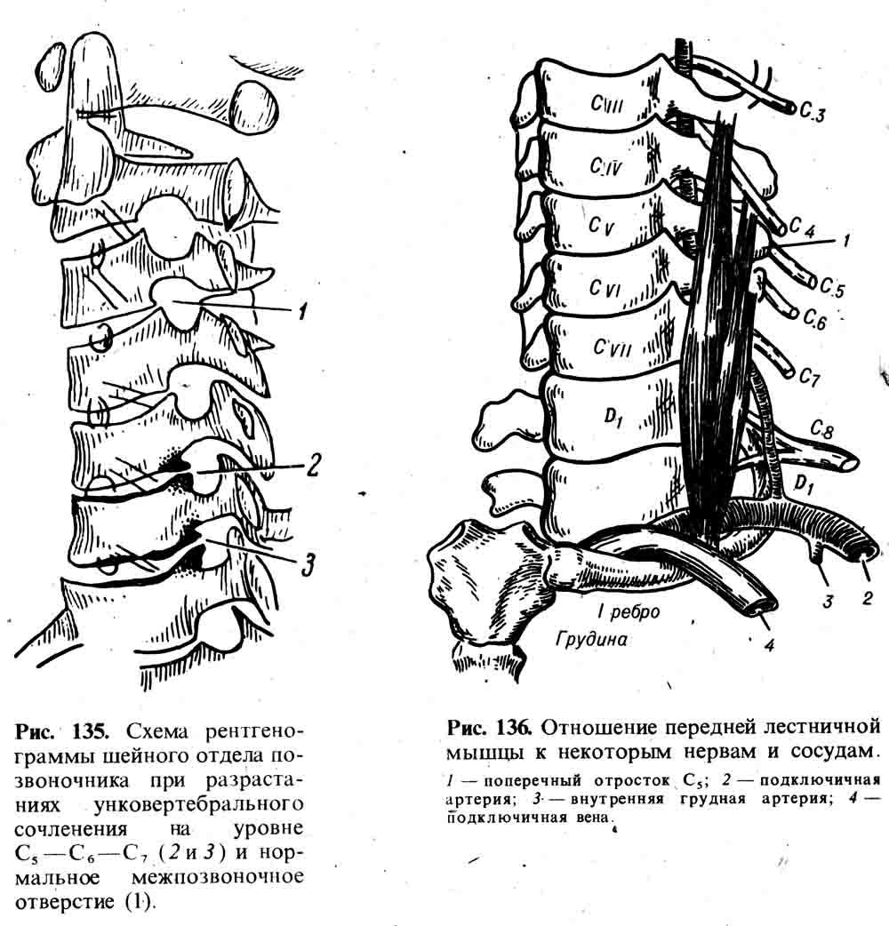 Унковертебральные суставы анатомия баскетбол при артрозе коленного сустава