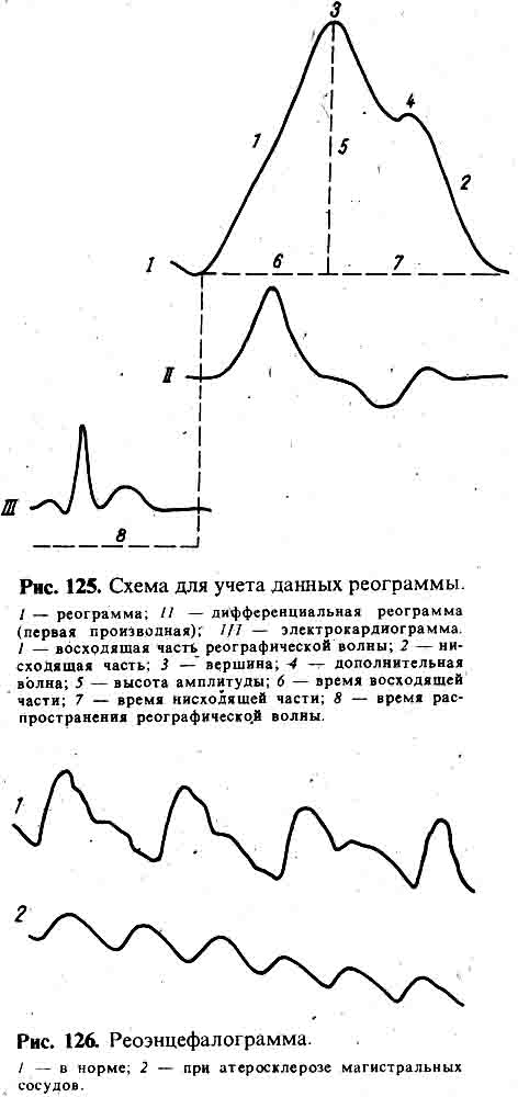 Эхоэнцефалография фото