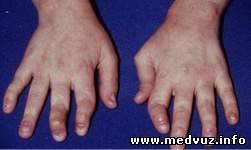 Реактивный артрит - Ревматология - скачать медицинские учебники ...