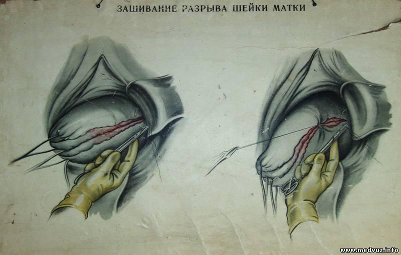 Разрывание вагины этом